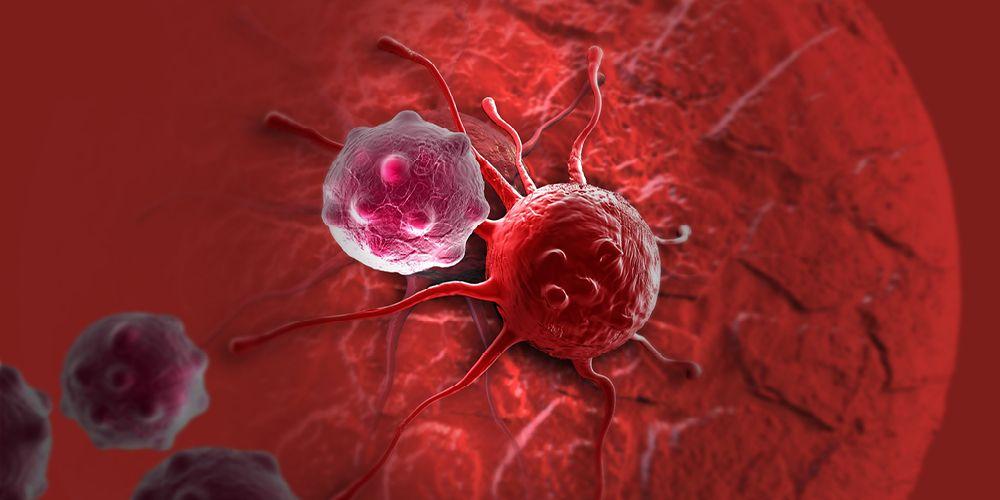 Penyebab kanker kelenjar getah bening tidak diketahui penyebabnya