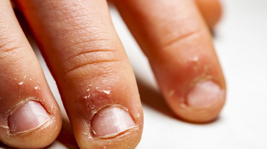 Berhati-hati saat sedang manikur karena bisa merusak kesehatan kuku