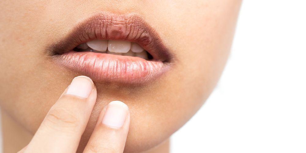 Manfaat minyak zaitun untuk bibir bisa mengatasi bibir hitam