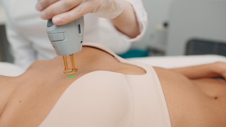 Tumbuh rambut di payudara bisa hilang dengan laser