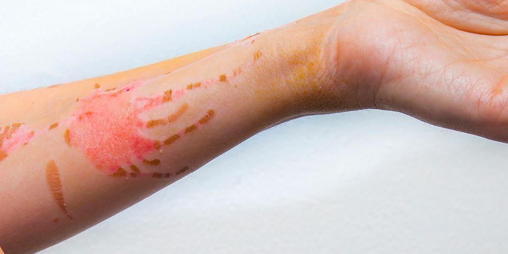 antiseptik untuk merawat luka bakar