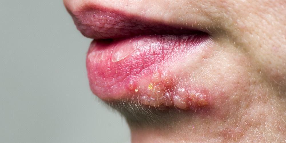 Jangan Salah Ini Mitos Fakta Mengenai Herpes Kelamin