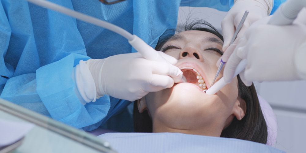scaling gigi