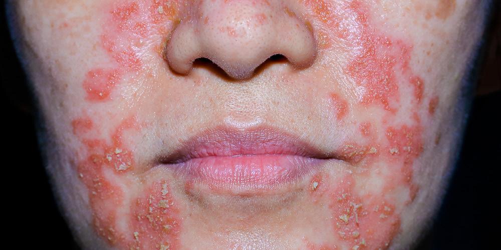 ruam kulit di wajah