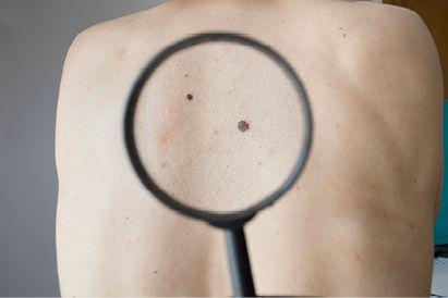 Rutinlah melakukan pemeriksaan pada kulit untuk mencegah kulit kering