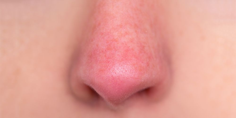 Rosacea ditandai dengan kemerahan pada hidung, pipii, dan dahi