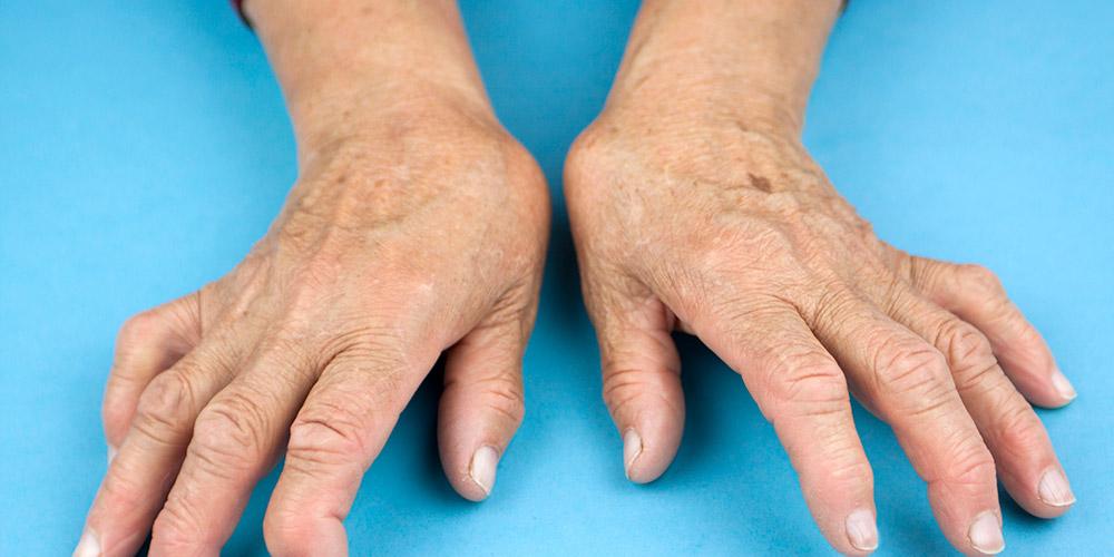 Rheumatoid arthritis adalah penyakit yang menyerang persendian