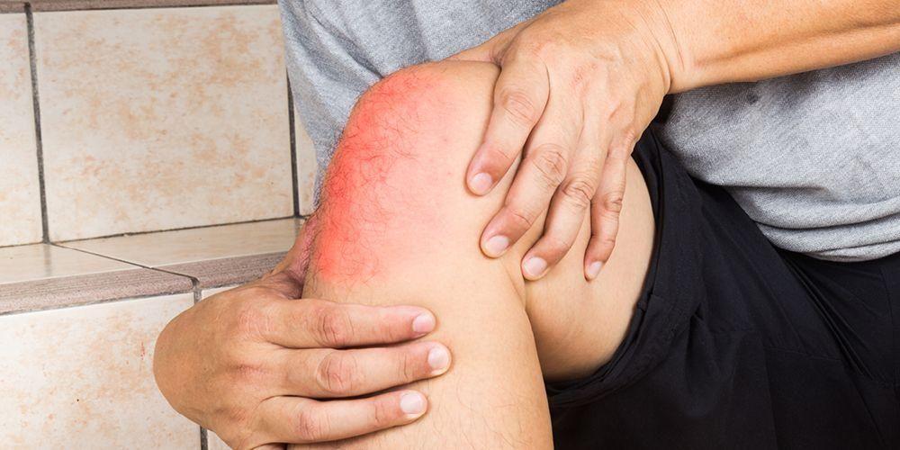 Cara mengatasi sakit di belakang lutut bisa dengan melakukan kompres dingin
