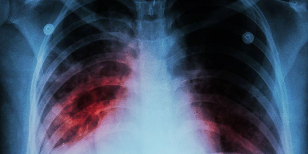 Batuk berdarah umumnya disebabkan karena bronkiektasis