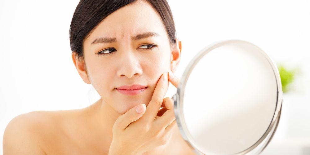 manfaat es batu untuk wajah: hilangkan jerawat