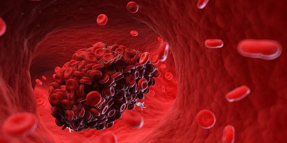 Darah menggumpal adalah hal yang normal saat haid