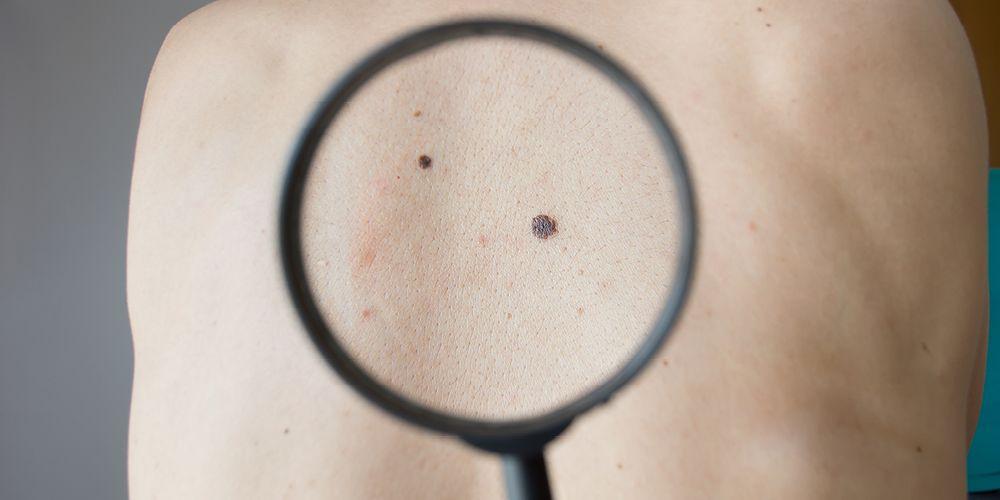 Rutinlah memeriksa kondisi kulit agar terhindar dari tumor atau kanker kulit