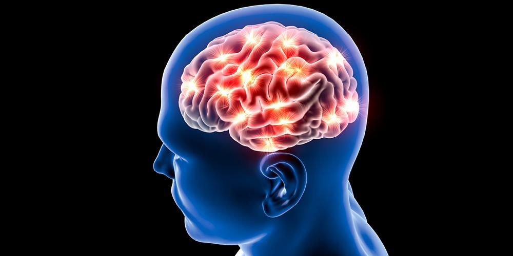 Stroke membuat otak cedera sehingga dapat menyebabkan kejang pada lansia