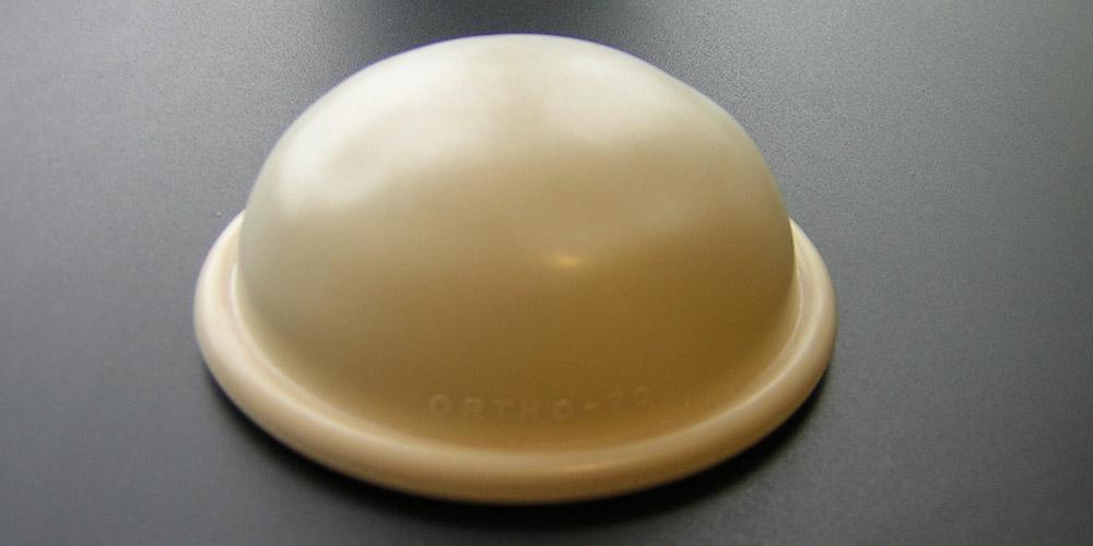 Alat kontrasepsi spons meningkatkan risiko toxic shock syndrome