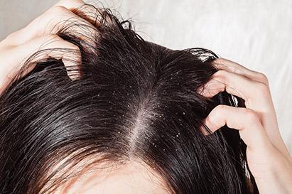 Dermatitis seboroik adalah penyebab kulit bersisik