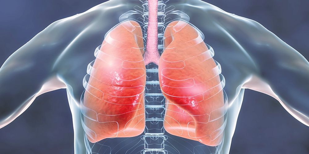 Hematokrit tinggi bisa menandakan adanya penyakit paru-paru