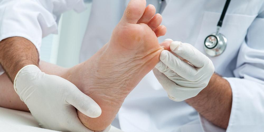 Terapi oleh dokter membantu penyembuhan cedera ligamen
