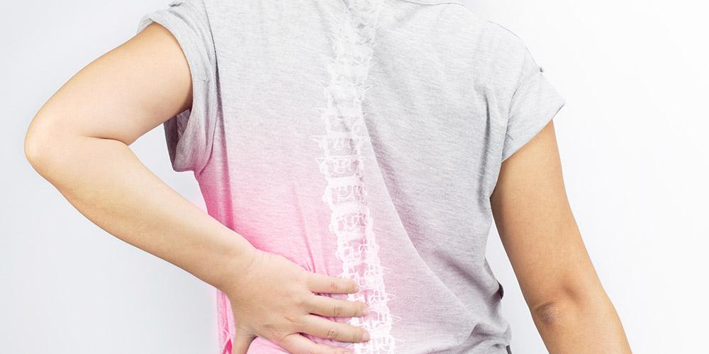 Berolahraga berat dipercaya dapat menyebabkan skoliosis