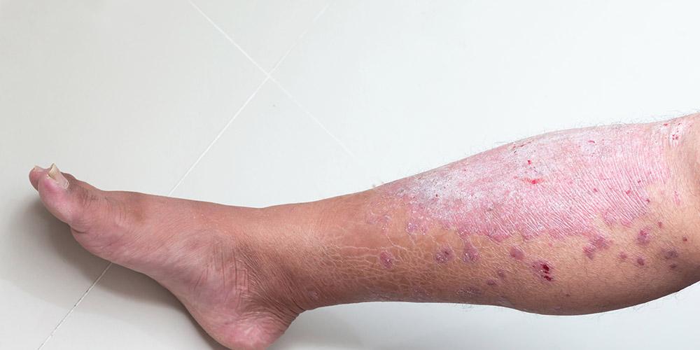 Kusta dapat disembuhkan jika gejalanya dideteksi dari awal