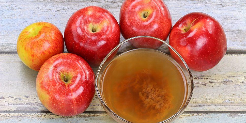 Cuka apel dapat menghilangkan tahi lalat