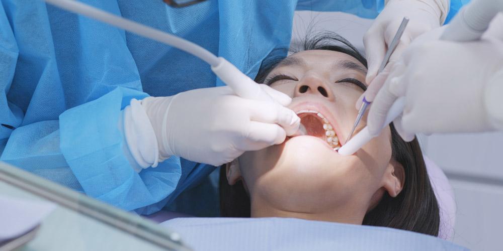 Karang gigi yang menumpuk dapat menyebabkan gusi berdarah