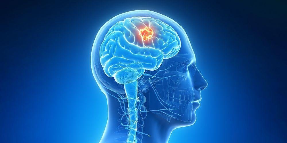 Tumor otak dapat memicu perubahan kepribadian