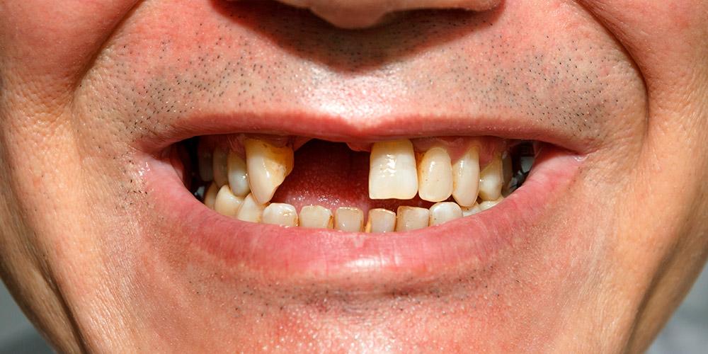 Pemasangan gigi palsu dapat menutupi gigi ompong