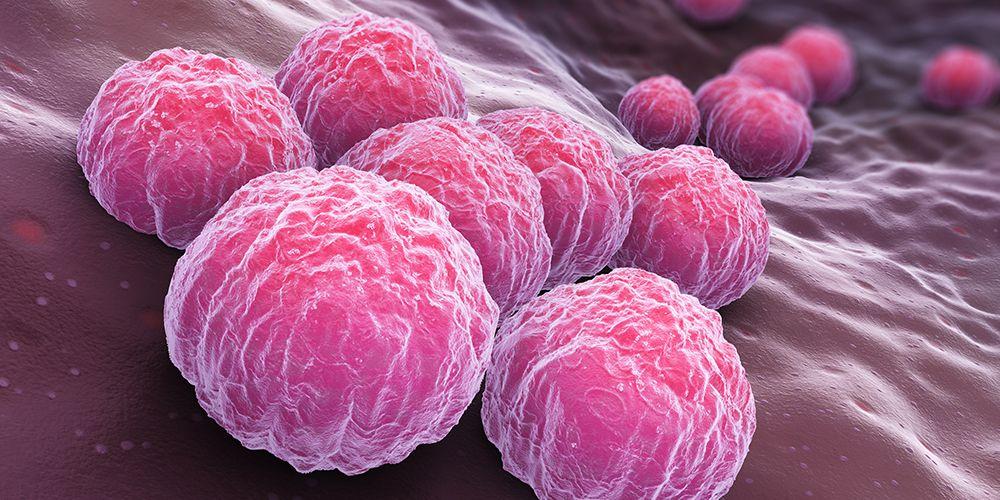 Kista bartholin yang terinfeksi bakteri ukurannya dapat membesar