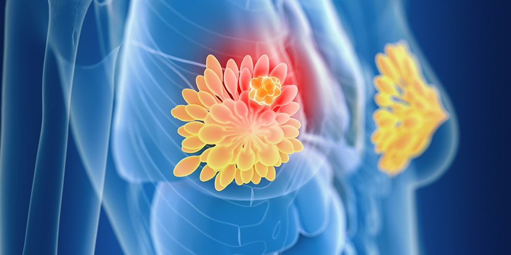 Benjolan payudara bisa dicurigai sebagai kanker