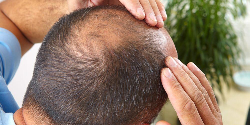 Kerontokan rambut yang banyak merupakan tanda kebotakan