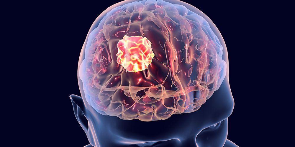 Gejala kanker tumor bisa berbeda tergantung posisi tumor