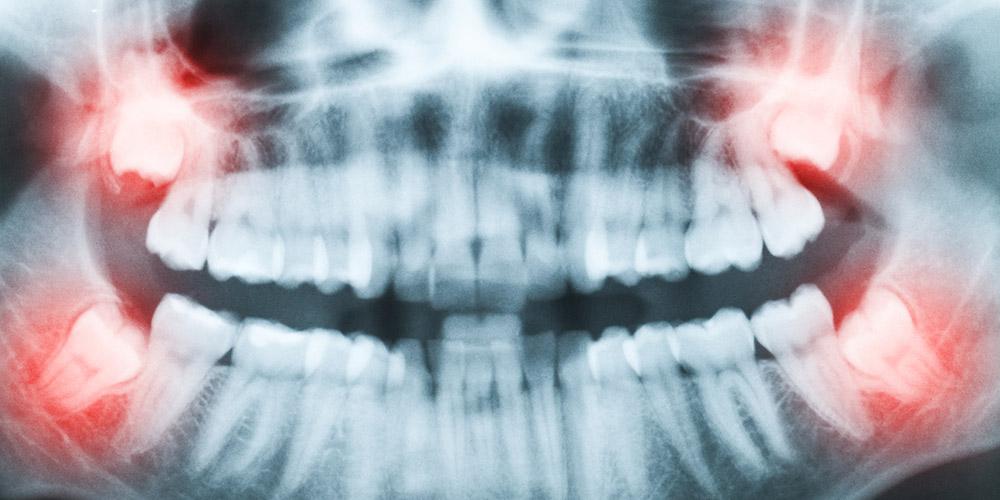 Foto rontgen panoramik dapat memperjelas arah tumbuh gigi bungsu
