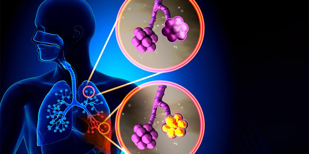 Resistensi antibiotik membuat penyakit sulit untuk disembuhkan