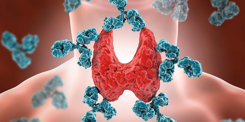Hipertiroid dapat menyebabkan kekurangan berat badan