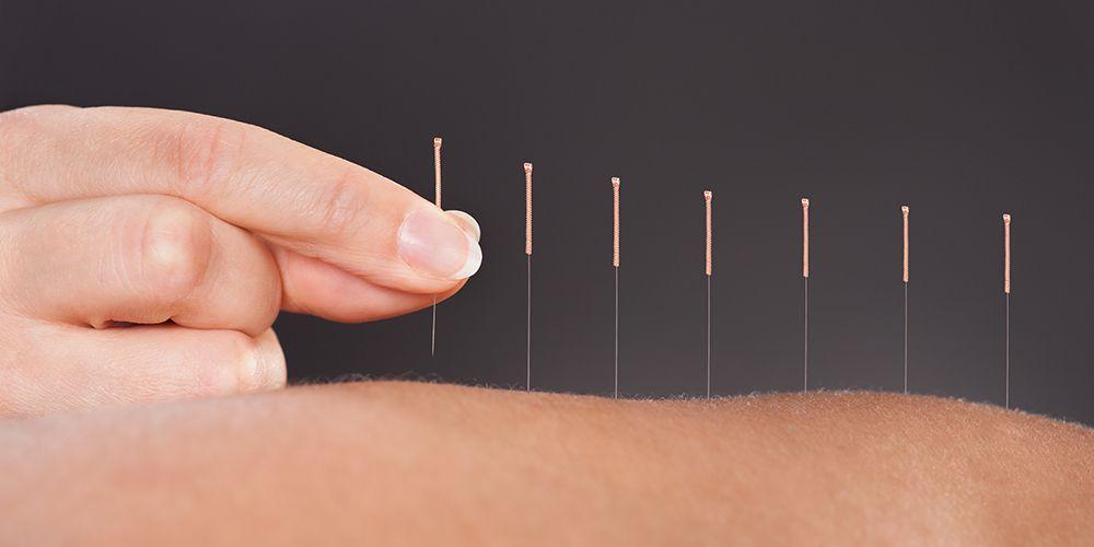 Akupuntur dipercaya dapat membantu melancarkan aliran darah