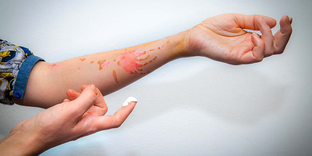 Pertolongan untuk luka bakar tergantung dari tingkat luka bakarnya