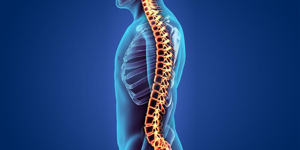 Spondilosis servikal merupakan penyakit yang menyerang tulang belakang