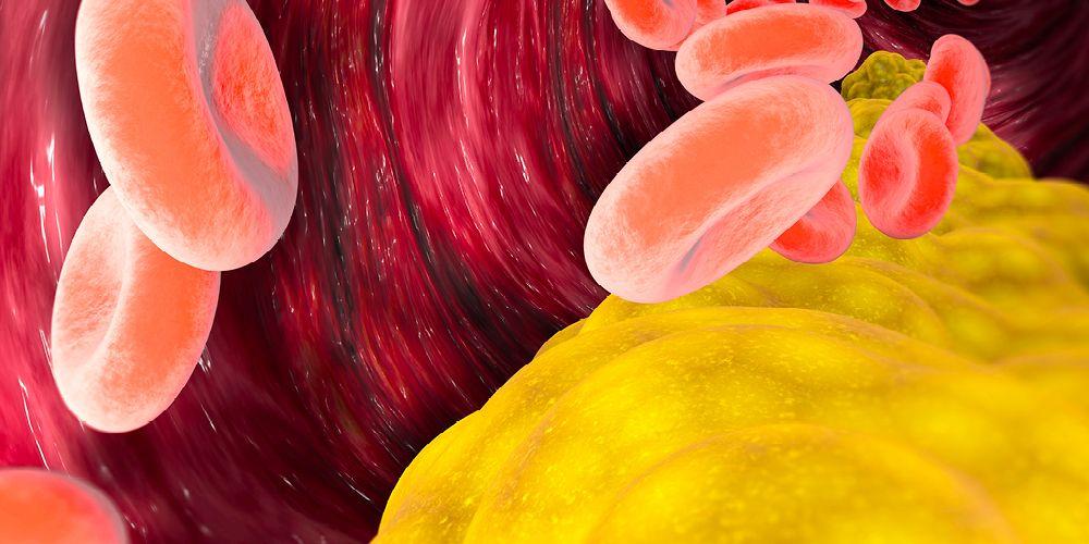 Bawang putih dapat mengurangi kadar kolesterl jahat atau ldl