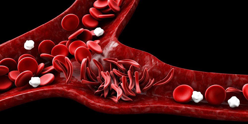 Anemia sel sabit merupakan sel darah merah yang berbentuk seperti bulan sabit