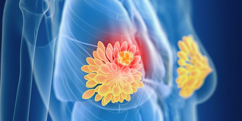 Ukuran fibroadenoma bervariasi