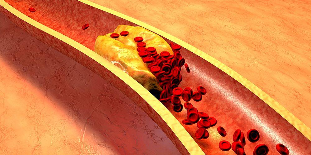 keju bantu sehatkan pembuluh darah