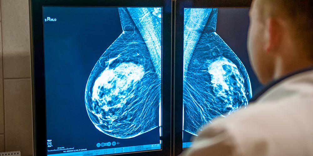 Lakukan cek kesehatan saat memasuki menopause