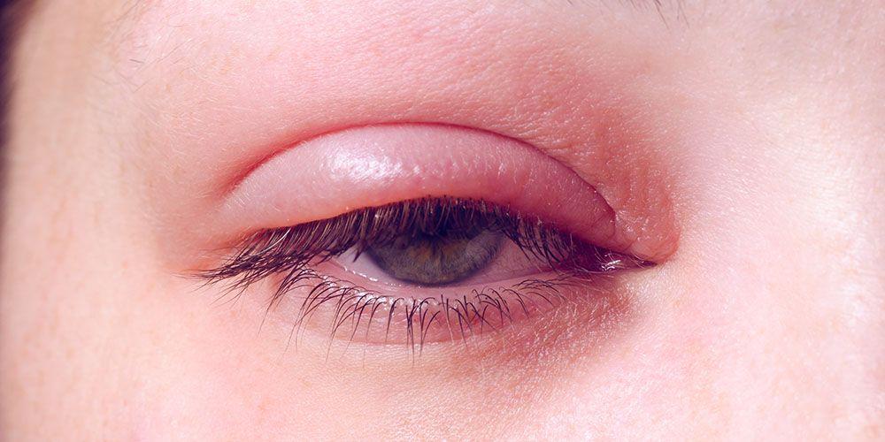 mata belekan akibat bintitan