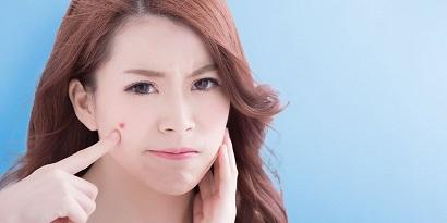 wajah jerawatan akibat radang usus besar