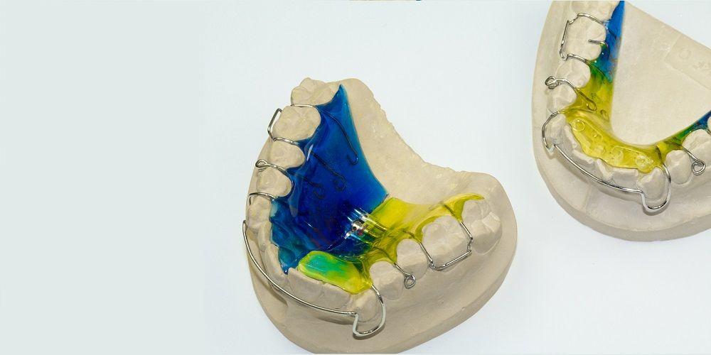 Kawat gigi lepasan bisa buat gigi rapi