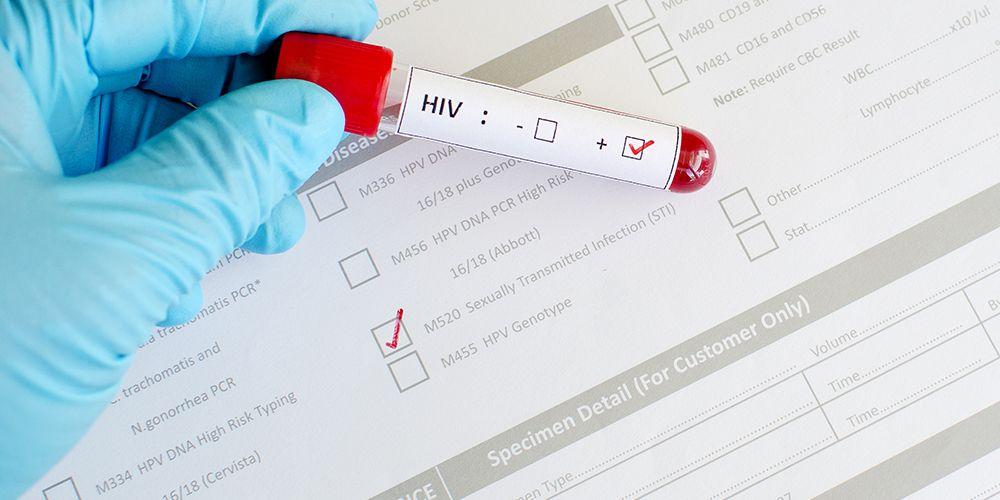 Tes HIV dalam pemeriksaan sebelum nikah penting dilakukan