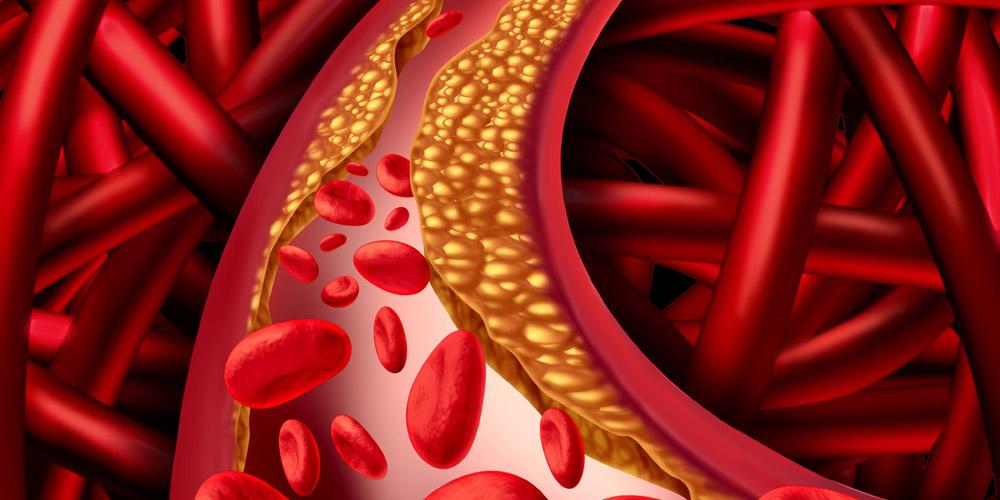 Salah satu penyebab infark miokard akut adalah penumpukan plak kolesterol di dinding pembuluh darah