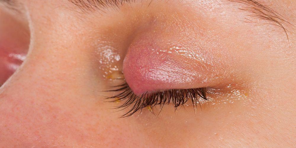Mata bengkak karena bintitian perlu dikompres dengan air hangat