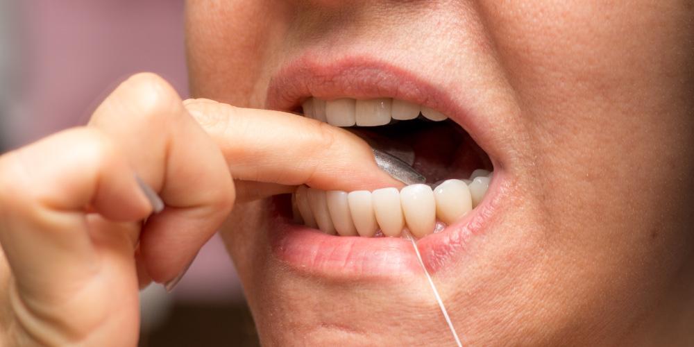 Cara menghilangkan bau pete berikutnya adalah flossing gigi
