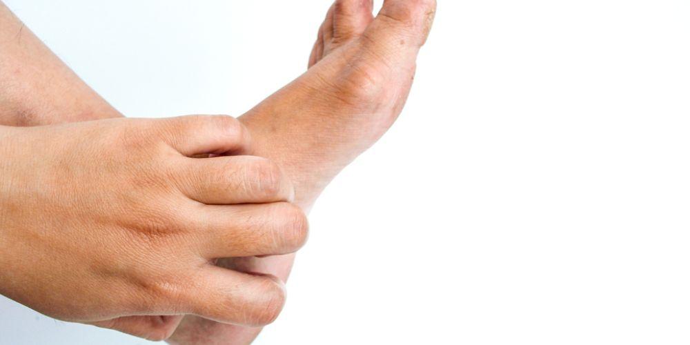 Telapak kaki gatal bisa karena kulit kering